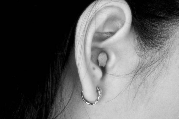 oreja de mujer con cabello largo arete y algodon dentro del oido el ajo desinflama el oido