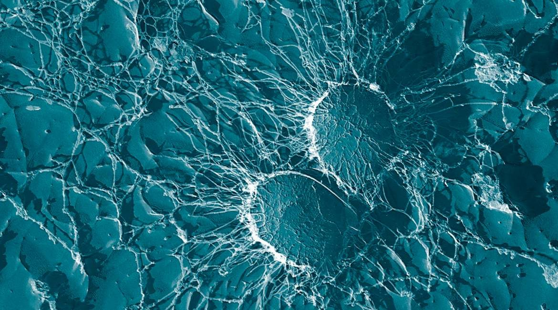 fotografia microscopica de toxinas atrapadas en tu cuerpo azul con ramificaciones blancas