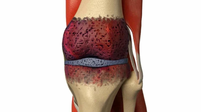 imagen del hueso de una rodilla ejemplificando las causas del dolor de rodillas