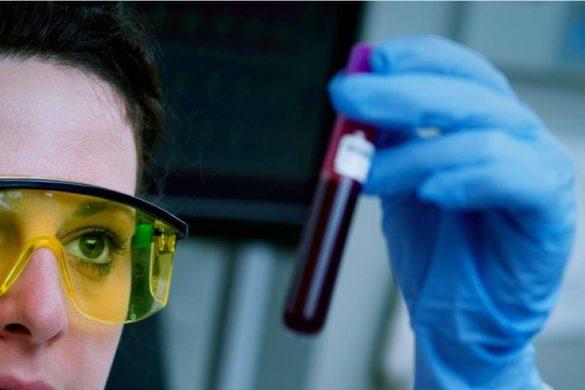 doctora con gafas de micas amarillas y guantes azules sosteniendo muestra de sangre
