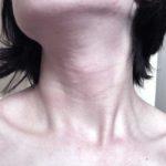 cuello de una mujer con cabello corto mira los signos de tipo de trastorno en la tiroides