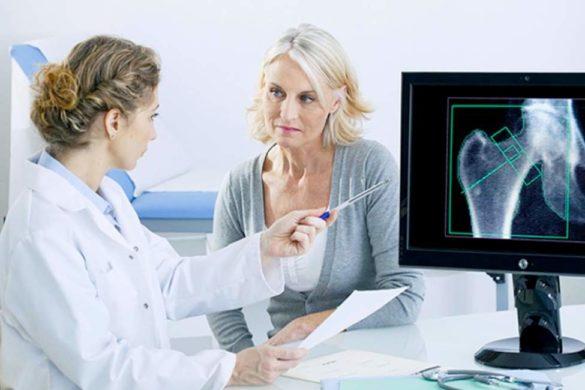 doctora explicando radiografia en computadora de los riesgos de tener osteoporosis