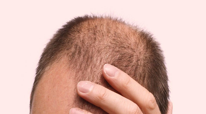 mano de hombre sobre su cabeza con muy poco cabello mira sobre la comida y caida de cabello