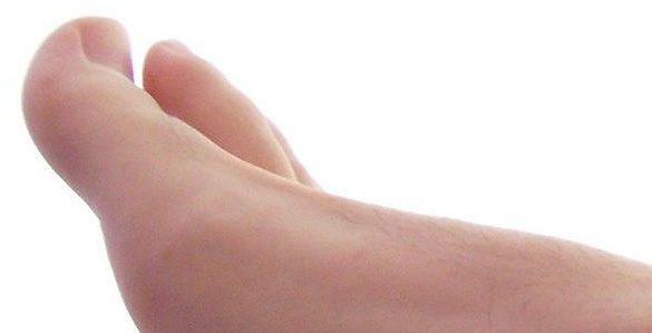 pie de mujer se observa el dedo pulgar y dedo indice ilustrando la fascitis plantar