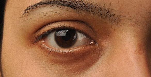 imagen del ojo ceja y oreja de un mujer conoces los habitos que danan tus ojos