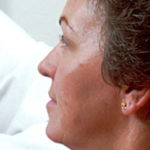 mujer en dialogo con doctor de bata blanca sobre sintomas para detectar el cancer de vulva