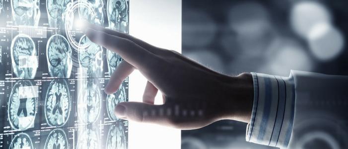 radiografias cerebrales con la mano de un doctor senalando una en especifico