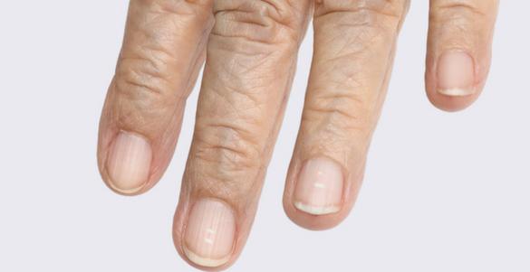 dedo indice medio anular y menique de un adulto mayor con puntos blancos en las unas