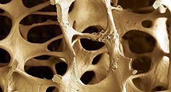fragmento de hueso visto de cerca se observar su porisidad por la osteoporosis