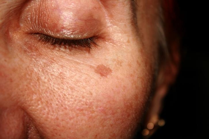 fotografia de rostro de mujer con ojo cerrado y ancha senil