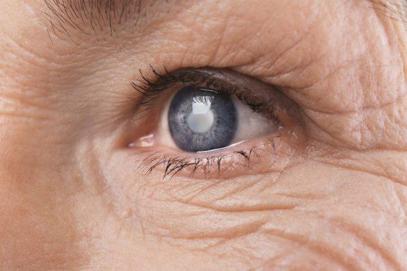 ojo de una persona mayor que presenta catarata